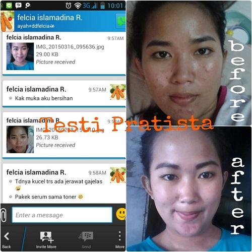 testimoni-paket-jerawat-pratista-2